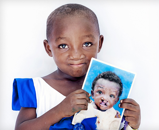operation smile Honor loved ones and change children's lives when you shop our catalog it's easy and meaningful.